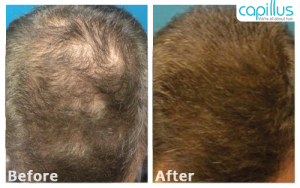 Before and After Capillus272 - Laser Treatment in Vegas