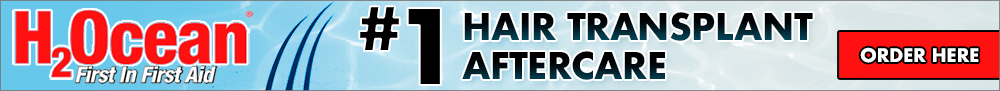 H2Ocean hair transplant aftercare products exclusively from VHT