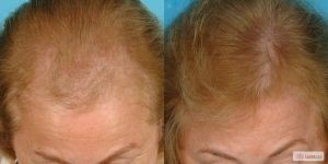 LASER-CAP-BEFORE-AFTER-FEMALE-1-300x150