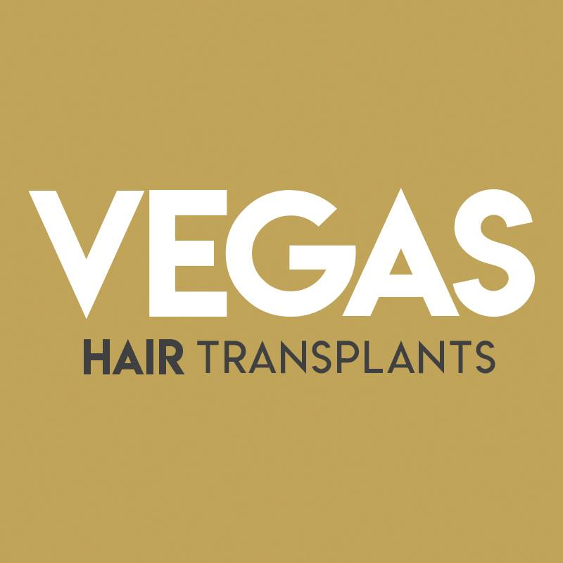 Vegas Hair Transplants