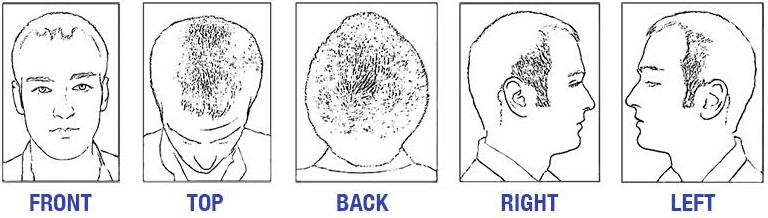 Hair Restoration In San Francisco, CA