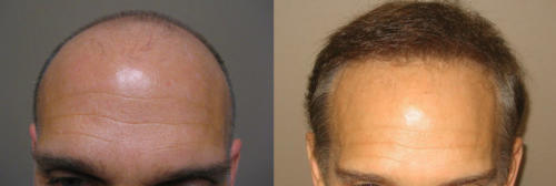 Mike McKeown - Before & After FUE